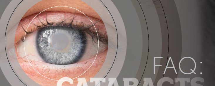 FAQ: Cataracts